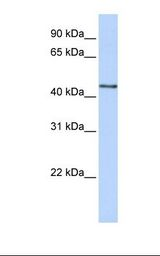 B3GNT4 Antibody - 293T cell lysate. Antibody concentration: 1.0 ug/ml. Gel concentration: 12%.  This image was taken for the unconjugated form of this product. Other forms have not been tested.