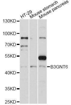 B3GNT6 Antibody - Western blot analysis of extracts of various cell lines, using B3GNT6 antibody at 1:1000 dilution. The secondary antibody used was an HRP Goat Anti-Rabbit IgG (H+L) at 1:10000 dilution. Lysates were loaded 25ug per lane and 3% nonfat dry milk in TBST was used for blocking. An ECL Kit was used for detection and the exposure time was 60s.
