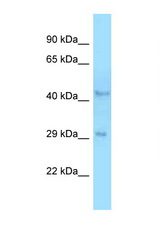 B4GALT3 antibody Western blot of Rat Liver lysate. Antibody concentration 1 ug/ml.  This image was taken for the unconjugated form of this product. Other forms have not been tested.