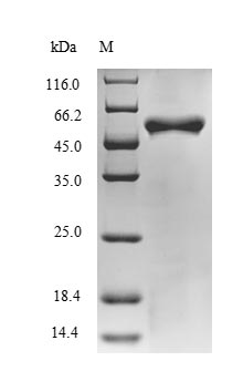 BH0637 Protein - (Tris-Glycine gel) Discontinuous SDS-PAGE (reduced) with 5% enrichment gel and 15% separation gel.