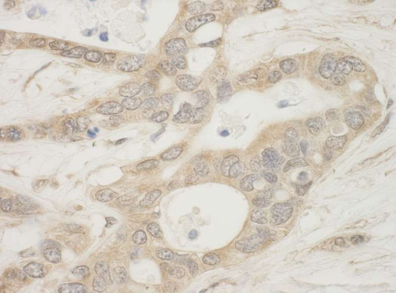 Detection of Human BAD by Immunohistochemistry. Sample: FFPE section of human ovarian carcinoma. Antibody: Affinity purified rabbit anti-BAD used at a dilution of 1:500.