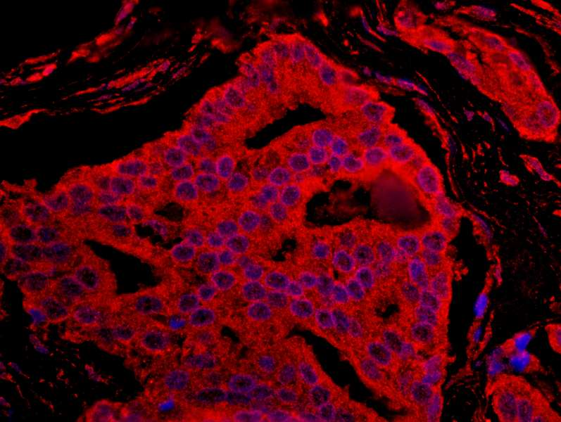 Detection of Human BAD by Immunohistochemistry. Sample: FFPE section of human prostate carcinoma. Antibody: Affinity purified rabbit anti-BAD used at a dilution of 1:100. Detection:Red-fluorescent Goat anti-Rabbit IgG-heavy and light chain cross-adsorbed Antibody DyLight 594 Conjugated (A120-601D4) used at a dilution of 1:100.