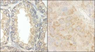 Detection of Human and Mouse BAD by Immunohistochemistry. Sample: FFPE section of human prostate carcinoma (left) and mouse renal cell carcinoma (right). Antibody: Affinity purified rabbit anti-BAD used at a dilution of 1:5000 (0.2 ug/ml) and 1:1000 (1 ug/ml).