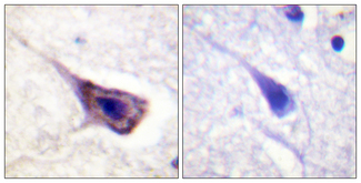 Immunohistochemistry analysis of paraffin-embedded human brain tissue, using BAD Antibody. The picture on the right is blocked with the synthesized peptide.