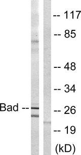 Western blot analysis of lysates from mouse liver, using BAD Antibody. The lane on the right is blocked with the synthesized peptide.