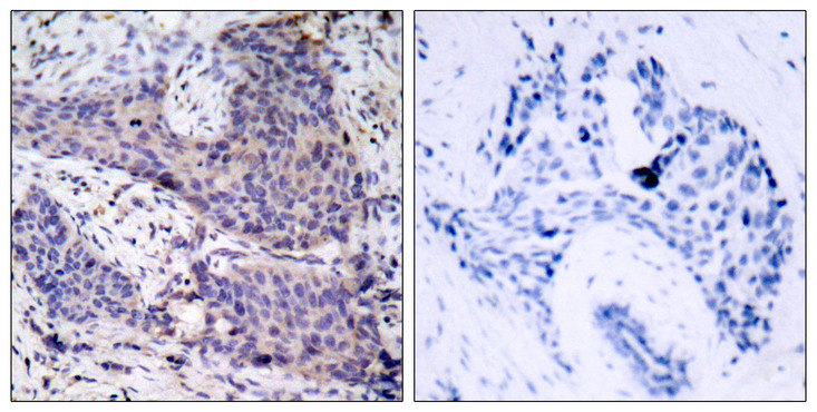 Immunohistochemistry analysis of paraffin-embedded human breast carcinoma tissue, using BAD Antibody. The picture on the right is blocked with the synthesized peptide.