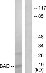 Western blot analysis of lysates from 293 cells, treated with Forskolin, using BAD Antibody. The lane on the right is blocked with the synthesized peptide.