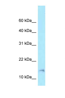 BAD antibody Western blot of 721_B Cell lysate. Antibody concentration 1 ug/ml.  This image was taken for the unconjugated form of this product. Other forms have not been tested.