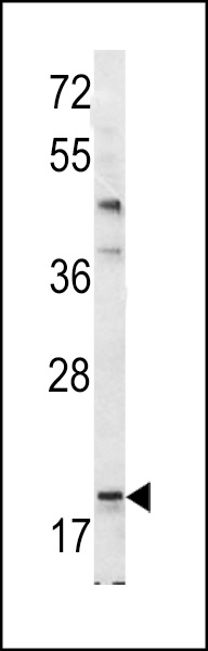Western blot of Bad BH3 Domain antibody in mouse bladder tissue lysates (35 ug/lane). Bad (arrow) was detected using the purified antibody.
