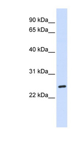 BAD antibody Western blot of Fetal Liver lysate. This image was taken for the unconjugated form of this product. Other forms have not been tested.