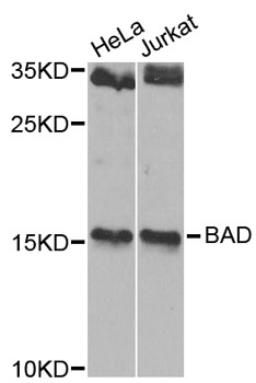 Western blot analysis of extracts of various cell lines, using BAD antibody at 1:1000 dilution. The secondary antibody used was an HRP Goat Anti-Rabbit IgG (H+L) at 1:10000 dilution. Lysates were loaded 25ug per lane and 3% nonfat dry milk in TBST was used for blocking. An ECL Kit was used for detection and the exposure time was 90s.