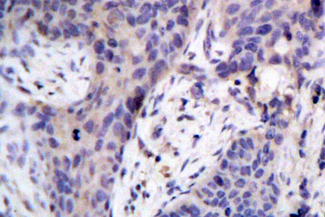 IHC of BAD(F130) pAb in paraffin-embedded human breast carcinoma tissue.