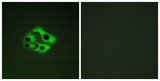 Immunofluorescence analysis of HeLa cells, using BAD (Phospho-Ser134) Antibody. The picture on the right is blocked with the phospho peptide.