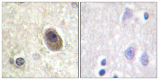 Immunohistochemistry analysis of paraffin-embedded human brain, using BAD (Phospho-Ser134) Antibody. The picture on the right is blocked with the phospho peptide.