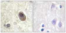 BAD Antibody - Immunohistochemistry analysis of paraffin-embedded human brain, using BAD (Phospho-Ser134) Antibody. The picture on the right is blocked with the phospho peptide.
