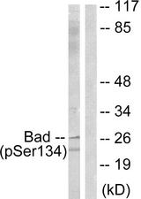 Western blot analysis of lysates from mouse liver, using BAD (Phospho-Ser134) Antibody. The lane on the right is blocked with the phospho peptide.