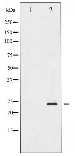 Western blot of BAD phosphorylation expression in Forskolin treated 293 whole cell lysates,The lane on the left is treated with the antigen-specific peptide.