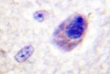 IHC of BAD (P130) pAb in paraffin-embedded human brain tissue.