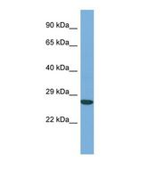Western blot of Human THP-1. ACTL6A antibody dilution 1.0 ug/ml.  This image was taken for the unconjugated form of this product. Other forms have not been tested.