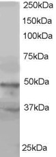 BAF53A / BAF53B Antibody - Antibody staining (1 ug/ml) of HeLa lysate (RIPA buffer, 35 ug total protein per lane). Primary incubated for 1 hour. Detected by Western blot of chemiluminescence.
