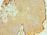 Immunohistochemistry of paraffin-embedded human skin using antibody at 1:100 dilution.