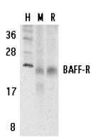 Western blot of BAFF-R in human (H), mouse (M), and rat (R) spleen tissue lysates with BAFF-R antibody at 5 ug/ml.