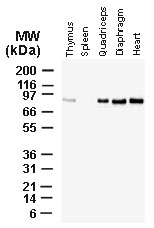 BAG3 / BAG-3 Antibody - Western blot of BAG-3 using Polyclonal Antibody to BAG-3 at 1:2000. Tissue lysates, normalized for total protein (20 ug/lane), were from a 4 week old male mouse. BAG-3 expression was detected at highest levels in skeletal (quadriceps and diaphragm) and smooth (heart) muscle specimens.
