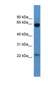 BAIAP2 / IRSP53 antibody Western blot of Mouse Heart lysate. This image was taken for the unconjugated form of this product. Other forms have not been tested.
