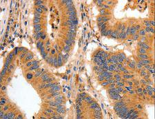 BAIAP2 / IRSP53 Antibody - Immunohistochemistry of paraffin-embedded Human colon cancer using BAIAP2 Polyclonal Antibody at dilution of 1:30.