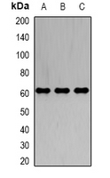 Western blot analysis of IRSp53 expression in A549 (A); K562 (B); SW620 (C) whole cell lysates.