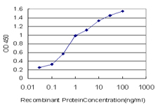 Detection limit for recombinant GST tagged BAIAP2L1 is approximately 0.03 ng/ml as a capture antibody.