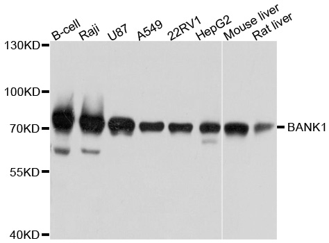 BANK1 / BANK Antibody - Western blot analysis of extracts of various cell lines, using BANK1 antibody at 1:1000 dilution. The secondary antibody used was an HRP Goat Anti-Rabbit IgG (H+L) at 1:10000 dilution. Lysates were loaded 25ug per lane and 3% nonfat dry milk in TBST was used for blocking. An ECL Kit was used for detection and the exposure time was 3s.