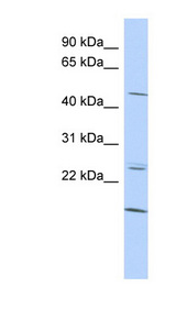 BARHL2 antibody LS-C109693 Western blot of HepG2 cell lysate.  This image was taken for the unconjugated form of this product. Other forms have not been tested.