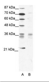 BARX1 Antibody - A: Marker, B: Jurkat Cell Lysate.  This image was taken for the unconjugated form of this product. Other forms have not been tested.