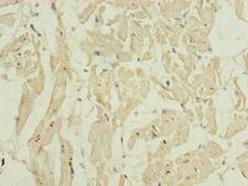 BARX1 Antibody - Immunohistochemistry of paraffin-embedded human heart tissue using BARX1 Antibody at dilution of 1:100