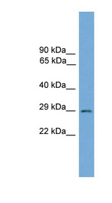 BARX2 antibody Western blot of Mouse Small Intestine lysate. This image was taken for the unconjugated form of this product. Other forms have not been tested.