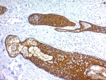 Basic Cytokeratin Antibody - Formalin paraffin human skin stained with Basic Cytokeratin antibody (KRTH/1076).  This image was taken for the unmodified form of this product. Other forms have not been tested.