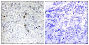 IHC of paraffin-embedded human breast carcinoma tissue, using BATF Antibody. The picture on the right is treated with the synthesized peptide.