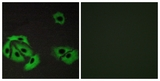 Immunofluorescence of A549 cells, using BAX Antibody. The picture on the right is treated with the synthesized peptide.
