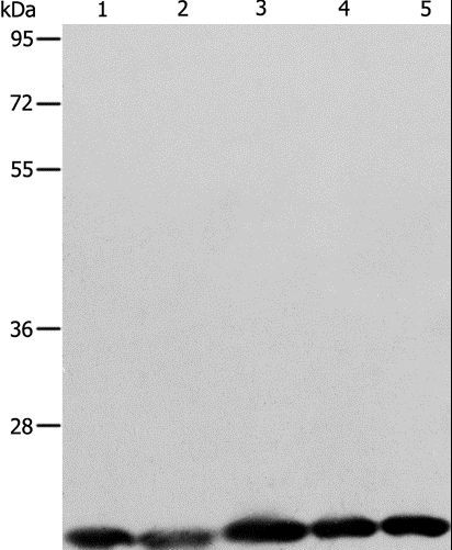 Western blot analysis of Human brain malignant glioma tissue, MCF7, Raji, Lovo and 293T cell, using BAX Polyclonal Antibody at dilution of 1:426.