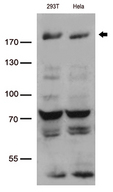 BAZ1B / WSTF Antibody - Western blot analysis of extracts. (35ug) from 2 cell lines lysates by using anti-BAZ1B monoclonal antibody. (1:500)