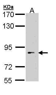 BBS12 Antibody - Sample (30 ug of whole cell lysate). A: Hep G2 . 7.5% SDS PAGE. BBS12 antibody diluted at 1:1000.