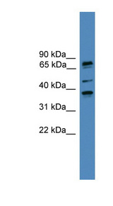 BBS5 antibody Western blot of COLO205 cell lysate. This image was taken for the unconjugated form of this product. Other forms have not been tested.