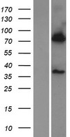 BBS7 Protein - Western validation with an anti-DDK antibody * L: Control HEK293 lysate R: Over-expression lysate