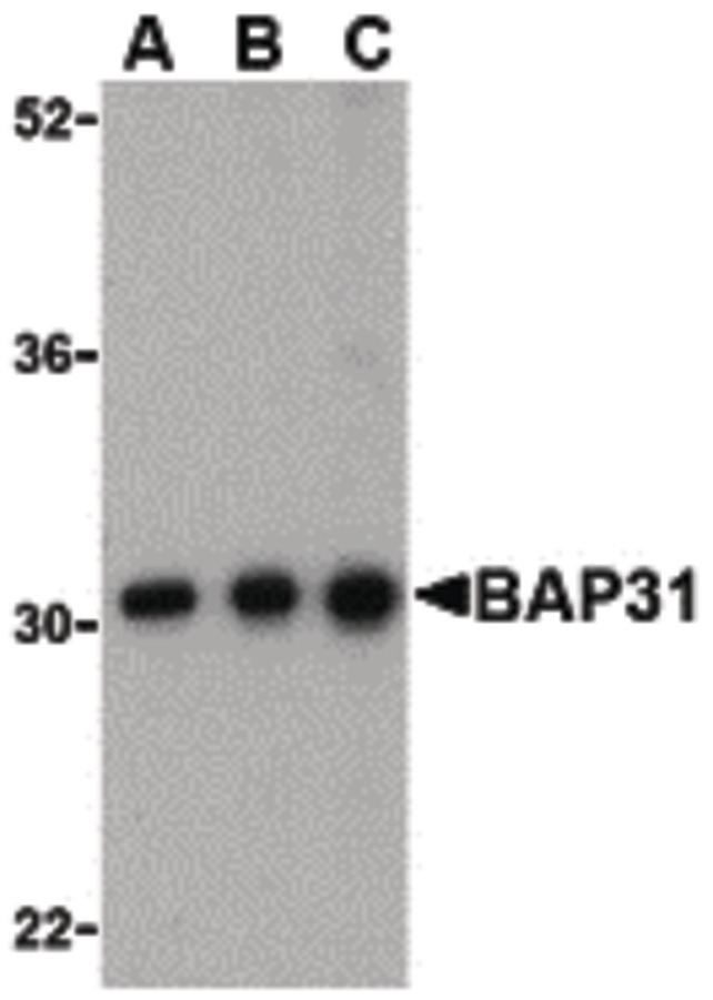 Western blot of BAP31 in Ramos cell lysate with BAP31 antibody at (A) 0.5, (B) 1 and (C) 2ug/ml.