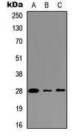 Western blot analysis of BAP31 expression in Ramos (A); MCF7 (B); HEK293T (C) whole cell lysates.
