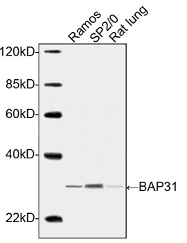 Western blot analysis of cell and tissue lysates using BAP31 Antibody, pAb, Rabbit The signal was developed with IRDye™ 800 Conjugated Goat Anti-Rabbit IgG. Predicted Size: 28 kDa Observed Size: 30 kDa