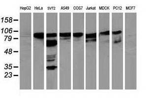 Western blot of extracts (35 ug) from 9 different cell lines by using anti-BCAR1 monoclonal antibody.