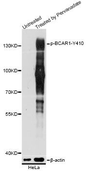 BCAR1 / p130Cas Antibody - Western blot analysis of extracts of HeLa cells, using Phospho-BCAR1-Y410 antibody at 1:5000 dilution. HeLa cells were treated by Pervanadate (1nM) for 30 minutes after serum-starvation overnight. The secondary antibody used was an HRP Goat Anti-Rabbit IgG (H+L) at 1:10000 dilution. Lysates were loaded 25ug per lane and 3% nonfat dry milk in TBST was used for blocking. Blocking buffer: 3% BSA.An ECL Kit was used for detection and the exposure time was 5s.