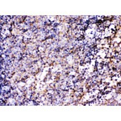 BCAR3 Antibody - BCAR3 was detected in paraffin-embedded sections of mouse lymphadenoma tissues using rabbit anti- BCAR3 Antigen Affinity purified polyclonal antibody at 1 ug/mL. The immunohistochemical section was developed using SABC method.